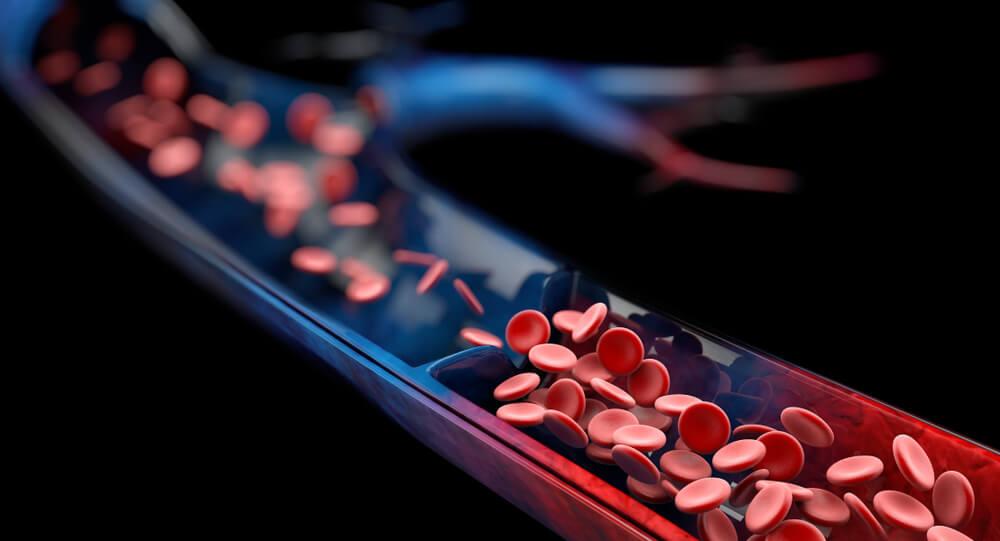 Zväčšené kŕčové žily môžu u pacientov spôsobovať komplikácie
