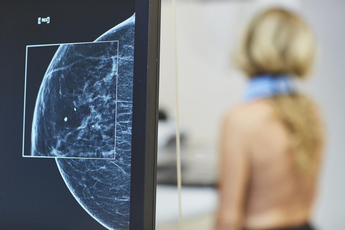 Mammacentrum sv. Agáty - snímok mammografu